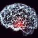 Braintoxic